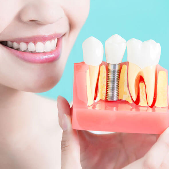 cosmetic tooth bonding