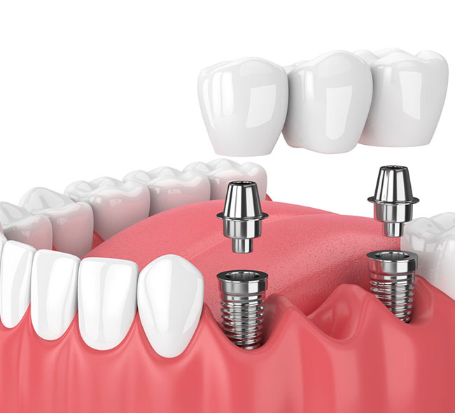 Dental Crowns and bridgework