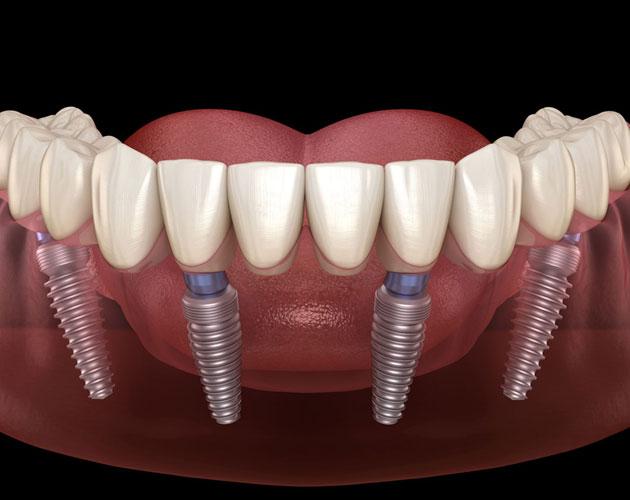 dentures spring tx