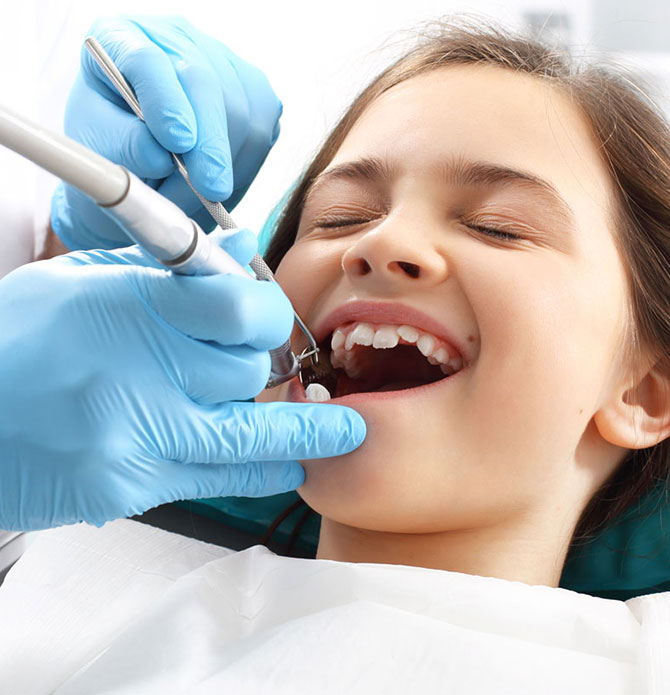 Dental Sealants in Spring, Tx